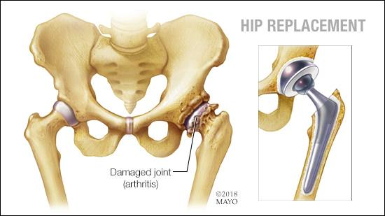 Hip Replacement - used with the permission from www.mayoclinic.org